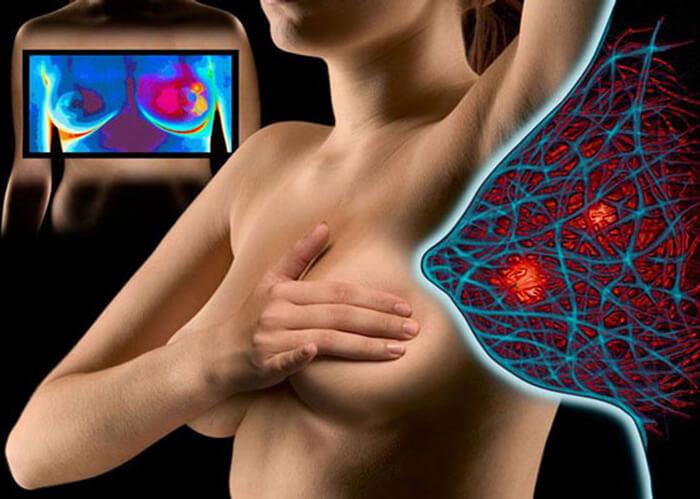 Диффузно-узловая форма гинекомастии