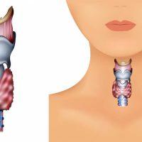 При развитии диффузного зоба щитовидная железа вырабатывает повышенное количество гормонов