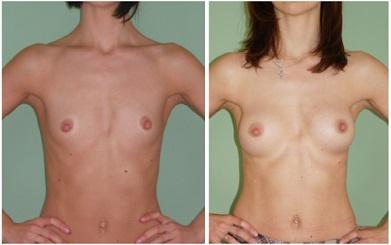 Результат увеличения груди