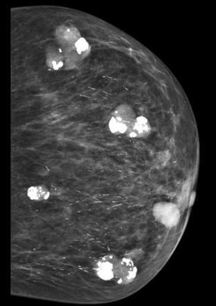 Доброкачественные опухоли в женской груди