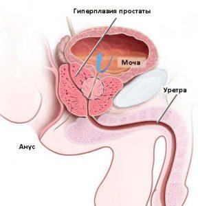 Уровень ПСА повышается при доброкачественной гиперплазии предстательной железы