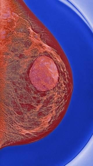 Как выглядит киста на снимке маммографии