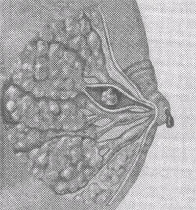 Папиллома в груди
