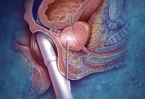 Для достоверности результатов важно правильно брать образцы опухоли простаты