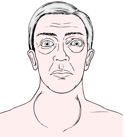 У пациентов с избыточной выработкой гормонов появляется экзофтальм