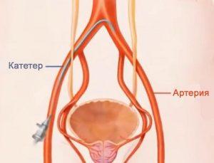 Для лечения предстательной железы применяется метод эмболизации артерий