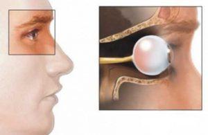 Диффузный токсический зоб сопровождается офтальмопатией
