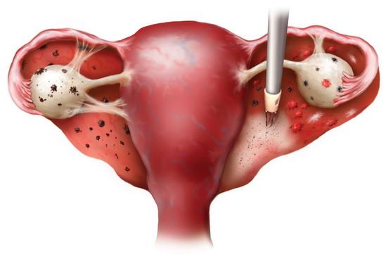 Эндометриоз развивается как следствие мастопатии
