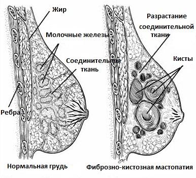 При фиброзно-кистозной мастопатии в груди обнаруживаются плотные участки соединительной ткани