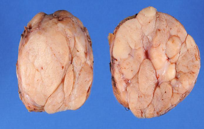 Фиброаденома представляет собой узел из железистых тканей