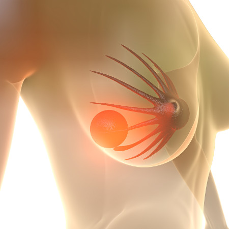 Фиброаденома сопровождается неприятными ощущениями в груди