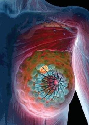 Доброкачественная опухоль фиброаденома