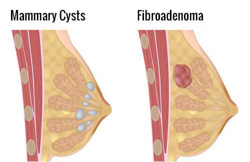 Фиброаденома чаще всего располагается в верхнем квадранте груди
