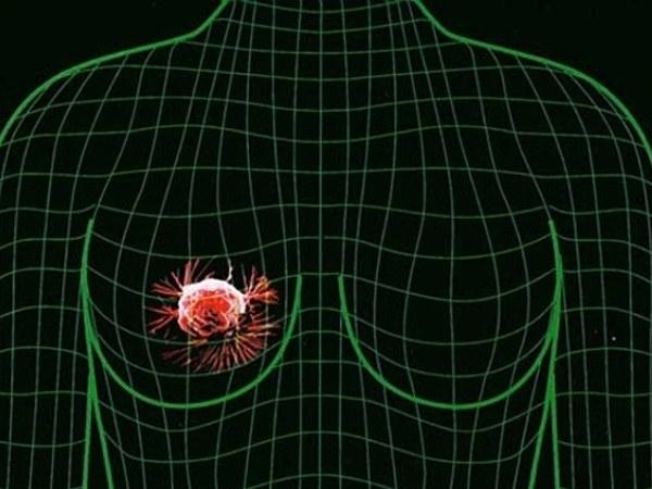 Диффузный фиброаденоматоз в женской груди