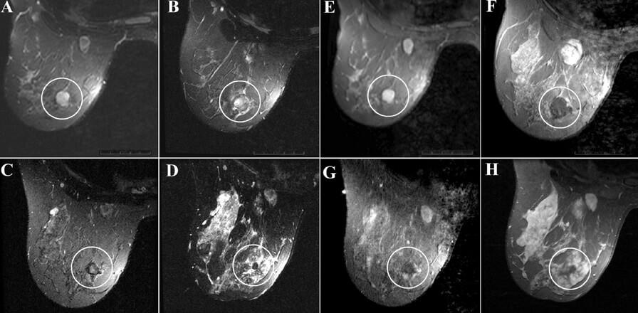 Диагностировать фиброму можно с помощью снимка УЗИ