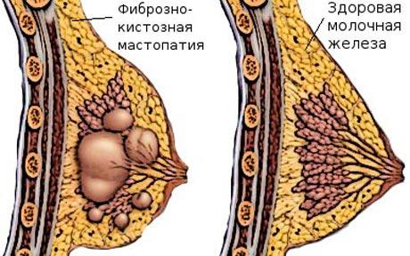 Здоровая и воспаленная грудь