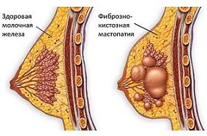 Здоровая грудь и с фиброзно-кистозной болезнью