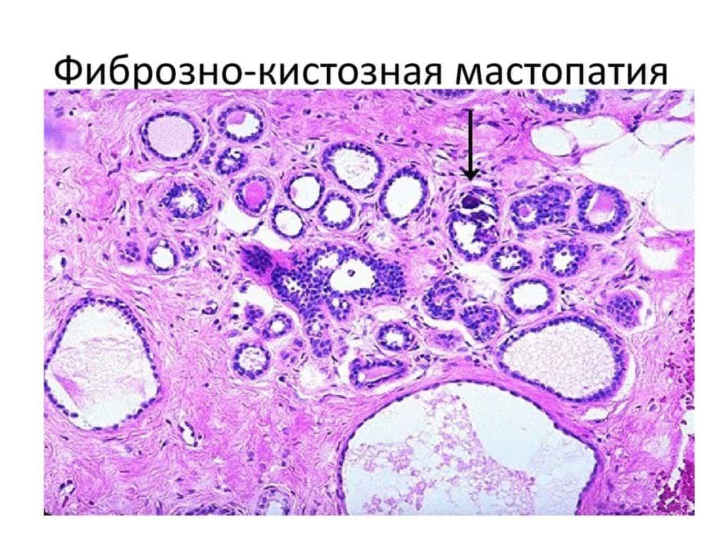 Мастопатия фиброзная, кистозная - лечение, симптомы.