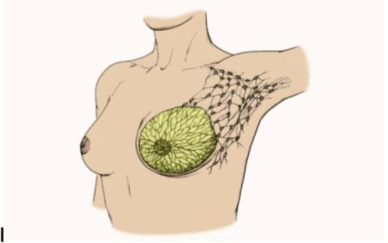 При мастопатии в груди образовываются уплотнения и узелки