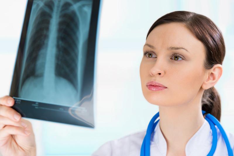 Флюорография позволяет определить наличие туберкулеза