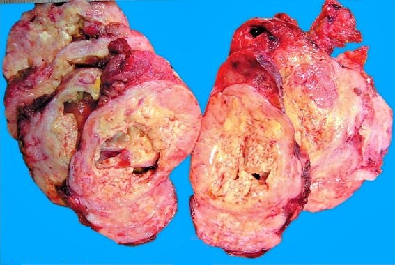 Фолликулярный рак щитовидки относится к опасным формам заболевания и может давать метастазы