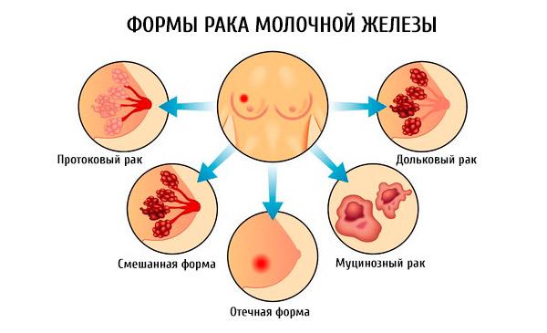связано есть ли боли при раке молочной железы Рязани февраля