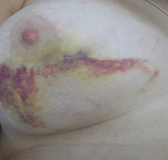 Увеличение груди каплевидные импланты