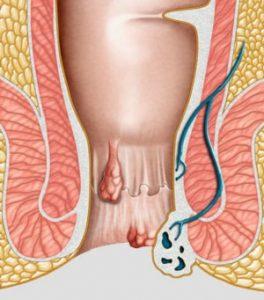 При геморрое массаж предстательной железы проводить нельзя