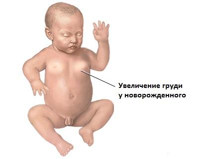 Увеличение грудных желез у новорожденного