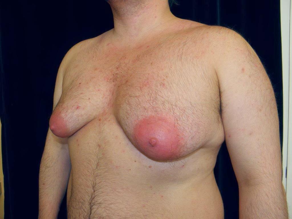 увеличение грудных желез спб гранд мед
