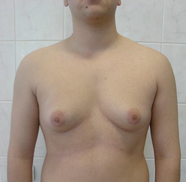 В результате дисбаланса женских и мужских гормонов может появиться гинекомастия