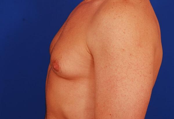 Гинекомастия как результат разрастания жировой ткани