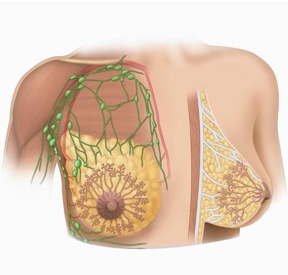 При гиперплазии наблюдается увеличение железистой ткани