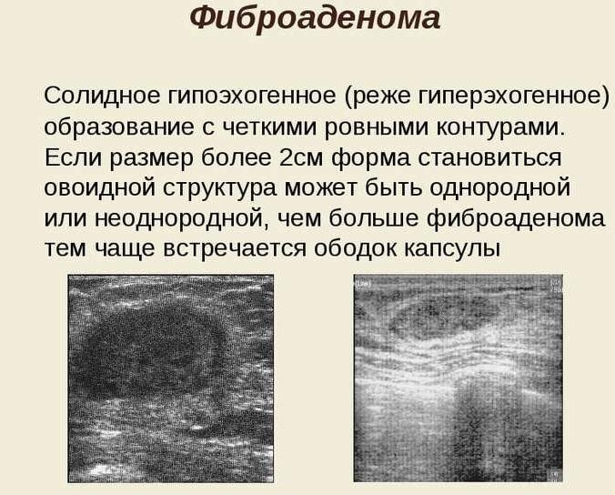 На УЗИ может быть выявлена фиброаденома