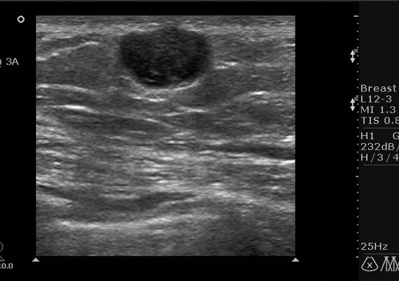 Гипоэхогенное образование говорит о патологии в молочной железе