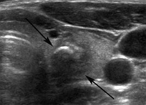 Гипоэхогенный узел в щитовидной железе требует оперативного лечения