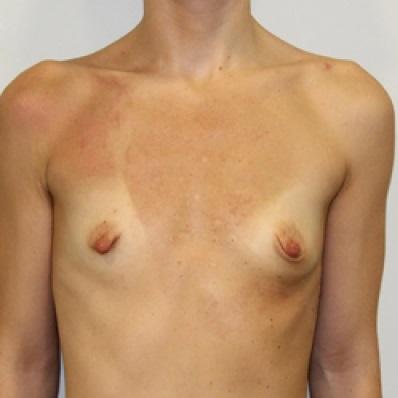 Недоразвитость груди