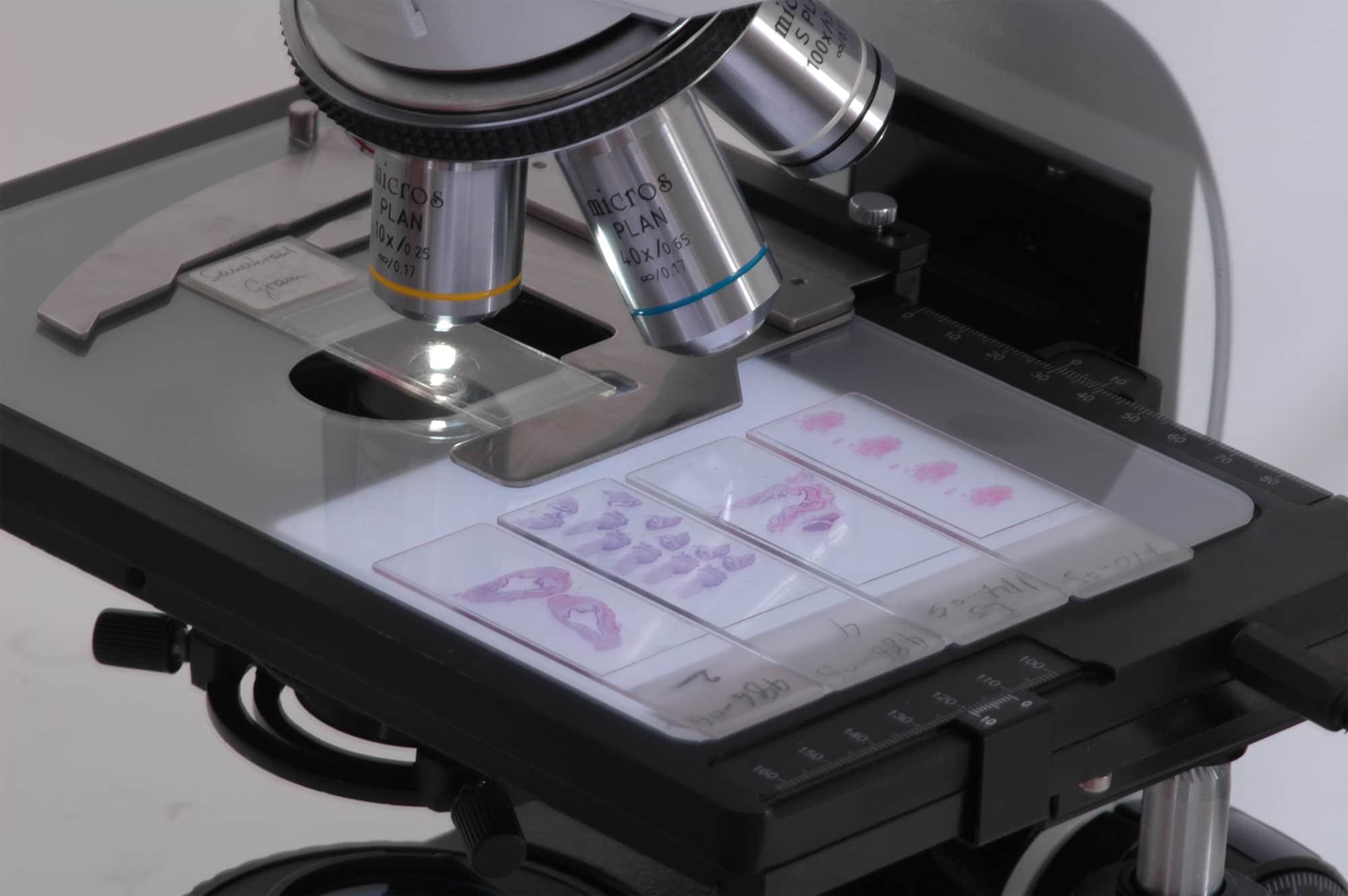 Биопсийный материал отправляют на исследование