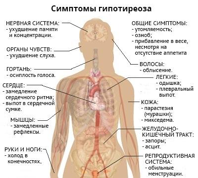 Основные симптомы гипотиреоза