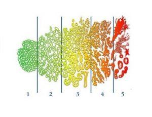 С помощью шкалы Глисона определяется стадия рака простаты