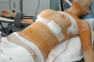 Грудь после операции