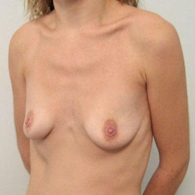 Фото висячая женская грудь