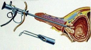 Аденому простаты лечат методом трансуретральной резекции