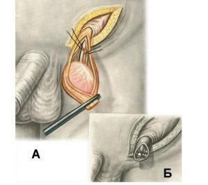 Во время проведения орхиэктомии удаляется часть семенного канатика