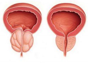 При хронических заболеваниях предстательной железы назначается проведение массажа простаты