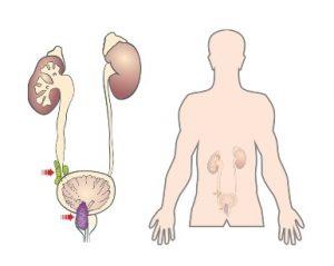Инфекция в предстательную железу может проникнуть из мочевыводящих путей