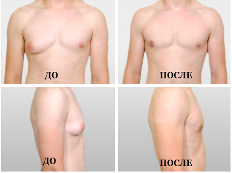 Мусжкая грудь до и после операции