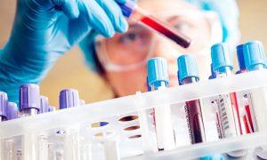 Исследование гормонального фона при токсическом зобе