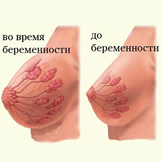 Увеличилась грудь болит твердые соски