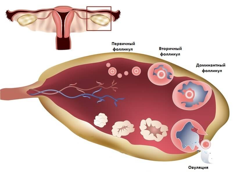У женщин с гипотиреозом появляются нарушения в менструальном цикле